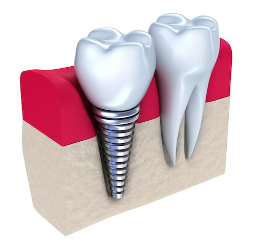 picture of teeth | dental implants des moines ia