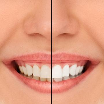 before and after teeth whitening | teeth whitening des moines ia
